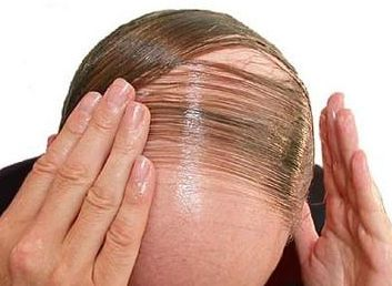 Image result for Illnesses. There are certain medical conditions that have hair loss as a side effect, such as anemia and hyperthyroidism. Deficiency in iron and an underactive thyroid gland affect your body and contribute to hair loss.