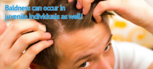 Prevent your kid from going bald with Provillus