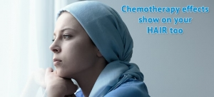 Chemotherapy effects on hair